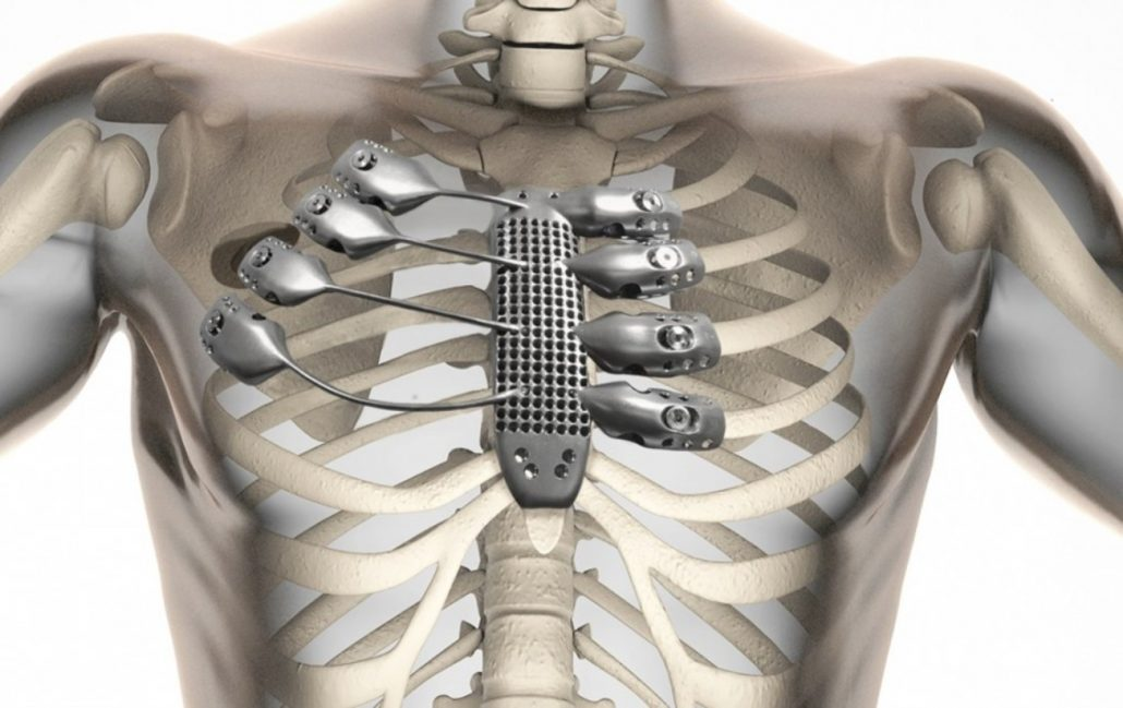 Prótesis internas