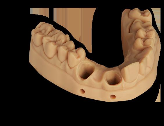 Modelo para implantología